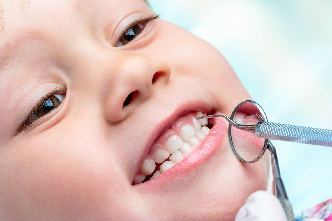 macro-close-up-of-little-life-year-old-showing-teeth-at-dental-check-up-dentist-hands-holding-mouth