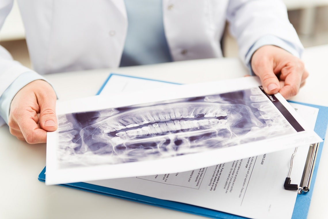 woman-dentist-looking-at-teeth-x-ray-in-dental-clinic-office-doctor-analyzing-scanned-jaw-of-his-pat